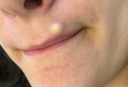 کیست صورت, بیماری کیست صورت, کیست پوستی صورت