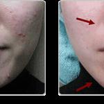 از بین بردن جوش صورت و درمان جای جوش با 10روش ساده