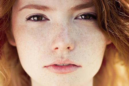 درمان کک و مک و جوش با لیزر