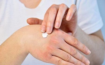 درمان خشکی دست